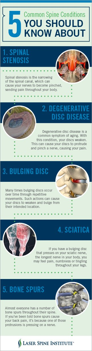 5 Common Back Conditions Infographic