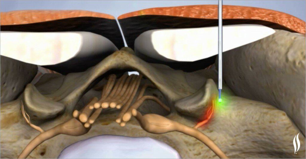 Minimally invasive procedures: how and when is the laser used?